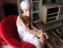 Anorexic nude model Isabelle Caro dead